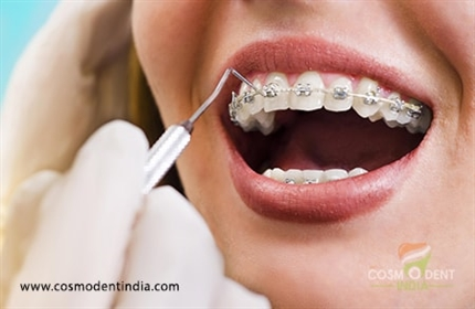 an-insight-into-orthodontic-treatment