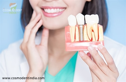 dental-implants-solution-to-your-missing-teeth