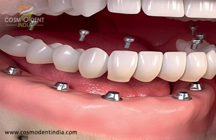 how-much-does-it-cost-for-full-dental-implants