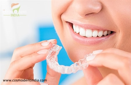 how-much-does-it-cost-to-get-invisalign