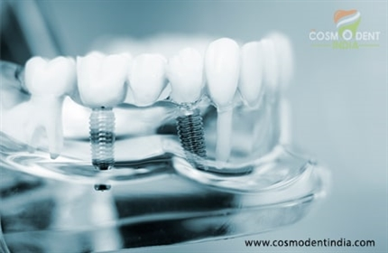 what-to-consider-before-going-for-all-on-4-dental-implants