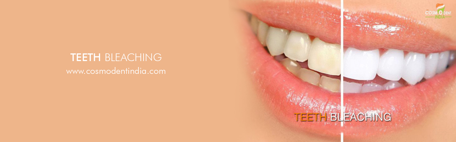 tooth-whitening-in-india
